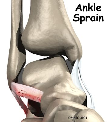 An Ankle Strain is an damage to one or more of the components of the ankle. Ligaments are the components that link one cuboid to the next, offering balance across joint parts.