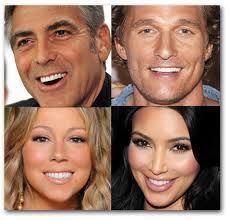 Celebrities with Veneers