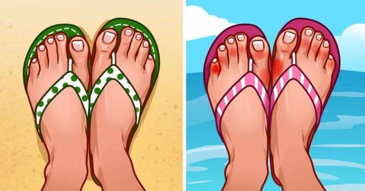 Κάτι που μας αφορά όλους αυτό το καλοκαίρι: οΙ λόγοι που πρέπει να προσέχουμε όταν φοράμε σαγιονάρες