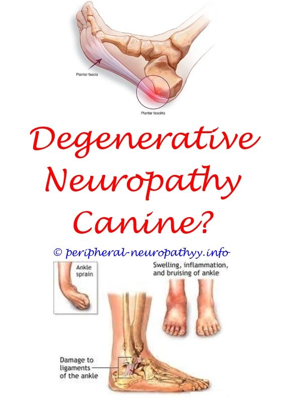 conservative treatment for ulnar neuropathy - back pain and small fiber neuropathy.peripheral neuropathy temsirlimus peripheral neuropathy pre diabetes voltarin good for neuropathy 1242677948