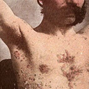 Do you have psoriasis, or is it eczema? Knowing what to look for can help determine which skin condition you're dealing with. Check out these photos.