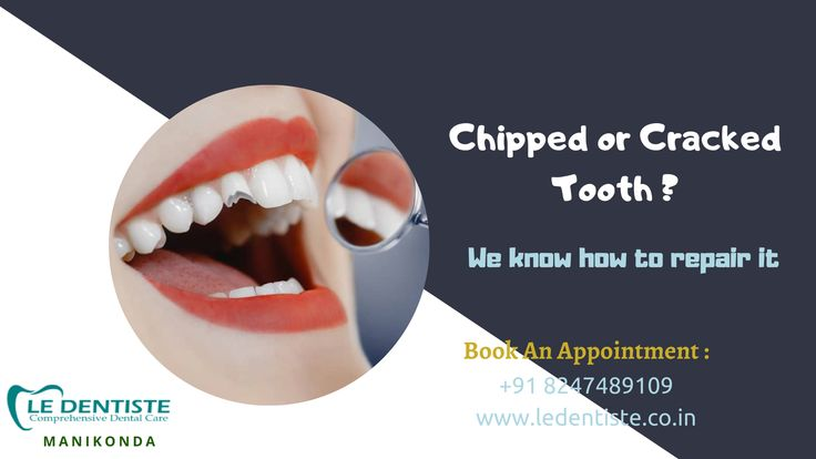 Chipped or cracked tooth we know how to repair it book