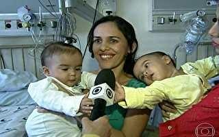 Gêmeas siamesas são separadas em cirurgia delicada em São Paulo