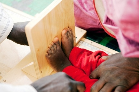 Mauritanie : prise en charge de la malnutrition aiguë dans le Gorgol - Croix-Rouge française