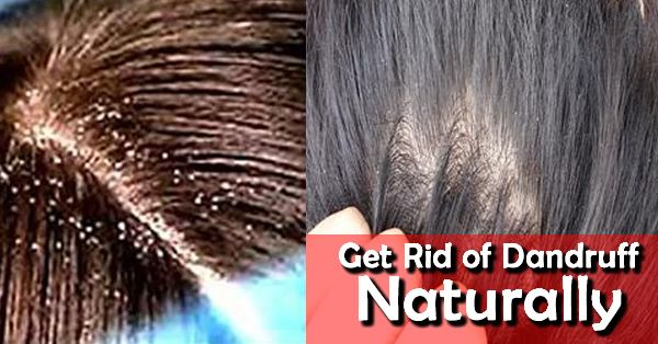 Regardless of what age you are, you might get terrible scalp conditions. Nevertheless, among the most typical ones as you are able to get is known as dandruff. There are no major conditions that co…