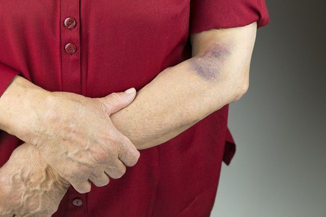6 prvotných príznakov poškodenia pečene