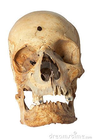 Who shot NEANDERTHAL MAN?  The Museum of Natural History in London has an early Paleolithic skull,  38,000 yrs old, found in Zambia in 1921. The left side of the skull is a PERFECTLY nearly ROUND HOLE, 1/3 inch in diameter. There are no radial split-lines around the hole or other marks that should have been left by an arrow or a spear. Opposite the hole, the cranium is shattered & reconstruction of the fragments show the skull was blown from the inside out, as happens with a GUNSHOT!  WEIRD!