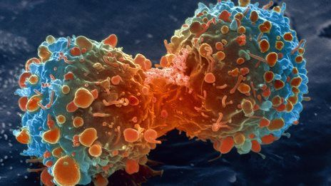 Is getting cancer just a matter of bad luck? In a new study in the journal Science, two thirds of cancer types analyzed were caused just by chance mutations rather than lifestyle choices. The BBC News has more details: http://www.bbc.com/news/health-30641833