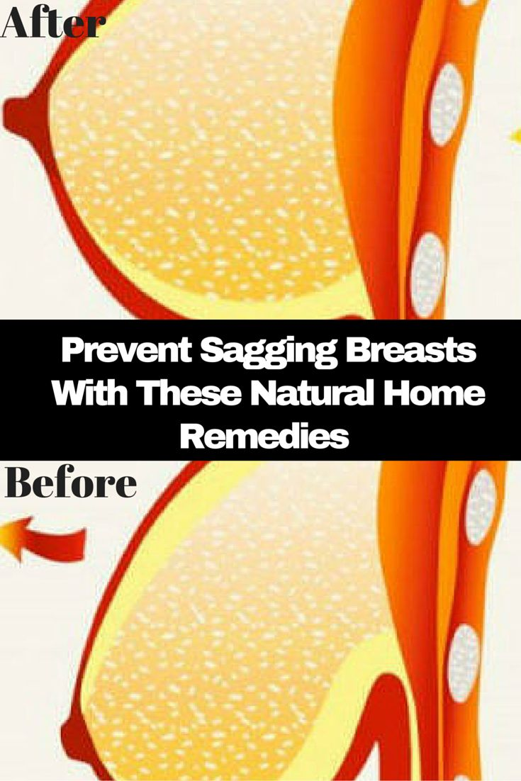 Prevent Sagging Breasts With These Natural Home Remedies!