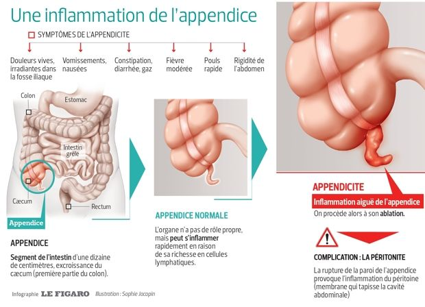 #Appendicite: le difficile diagnostic qui complique tout ! #santé