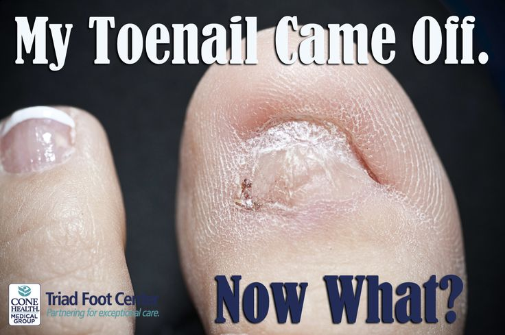 When your toenail comes off, here are a few things you need to know. http://www.triadfoot.com/2016/04/26/toenail-came-off-now-what/