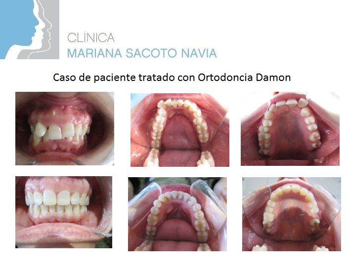 Caso de paciente tratada con #Ortodoncia Damon