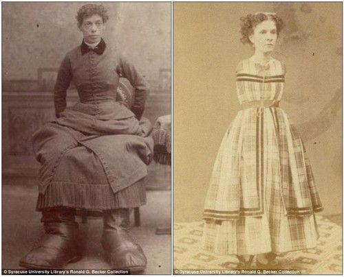 Fanny Mills , a 'Pé Grande', sofria da Doença de Milroy, que causa grande inchaço nas pernas. Anne Leek, que não tinha braços, juntou-se a um circo de horrores para se sustentar e ter onde morar