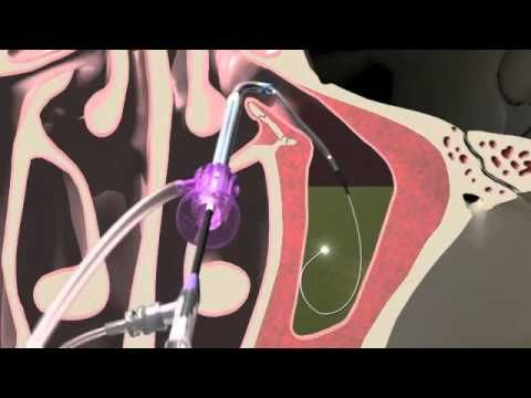 Balloon Sinuplasty Animation of the Maxillary Sinus | Seattle Sinus Surgeon - YouTube
