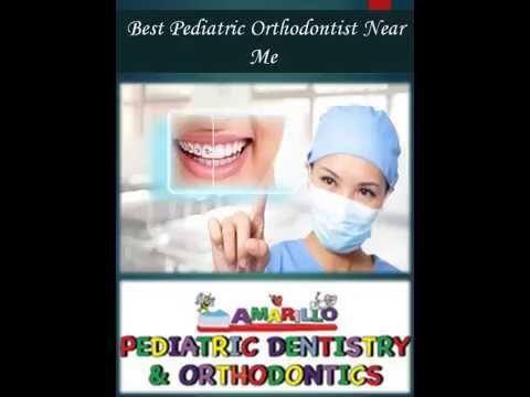 Customers always try Best Pediatric Orthodontist Near Me because of their excellent service. Our Orthodontist dentist are calm and know how to handle children. Contact Pediatric Orthodontist Near Me. Visit our website today:  http://www.amarillopediatricdentistry.com/web/orthodontics