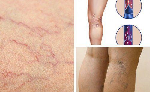 Bei Durchblutungsstörungen in den Beinen kommt es häufig zu Besenreisern oder Krampfadern, die Venen sind folglich meist geschwächt und der Blutfluss in Richtung Herz gestört.