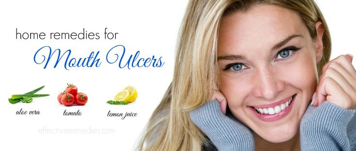 Top 15 natural home remedies for mouth ulcers on lips