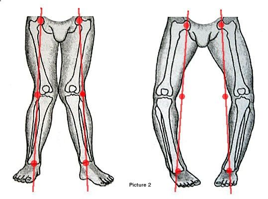 Bow Legs - A Bow leg (genu varum) is a condition of legs when knees are wide apart when a person stands with the feet and ankles together. Looking for a Permanent Remedy for Bow Legs - Without the Need for Surgery?