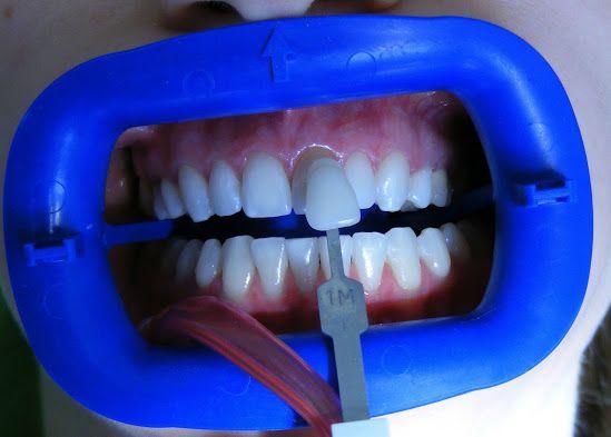 Migliori metodi di sbiancamento professionali  per Voi  , in Romania! Vi invitiamo a vedere di più  e nostri prezzi qui e contattaci subito! http://www.intermedline.com/dental-clinics-romania/ #clinicadentale #clinicadentaleinRomania #clinicaodontoiatrica #clinicaodontoiatricainRomania #sbiancamentodentale #sbiancamentodentaleinRomania #sbiancamentodidenti #sbiancamentodidentiinRomania #dentista #dentistainRomania #turismodentale #turismodentaleinRomania