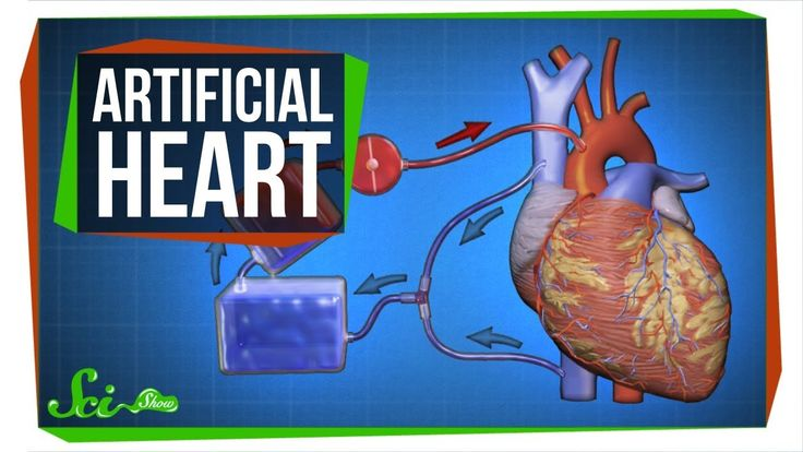 The Key to an Artificial Heart ... and Open-Heart Surgery