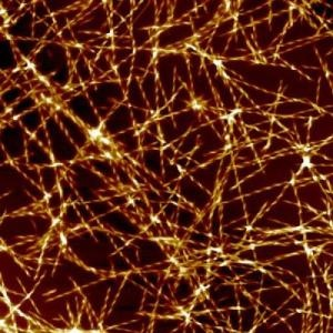 """Molecular Trigger for Alzheimer's Disease Identified: Researchers at Cambridge's Department of Chemistry have pinpointed a catalytic trigger for the onset of Alzheimer's disease – when the fundamental structure of a protein changes to cause a chain reaction that leads to the death of neurons in the brain. For the first time, they have been able to map in detail the pathway that generates """"aberrant"""" forms of proteins which are at the root of neurodegenerative conditions such as Alzheimer's."""