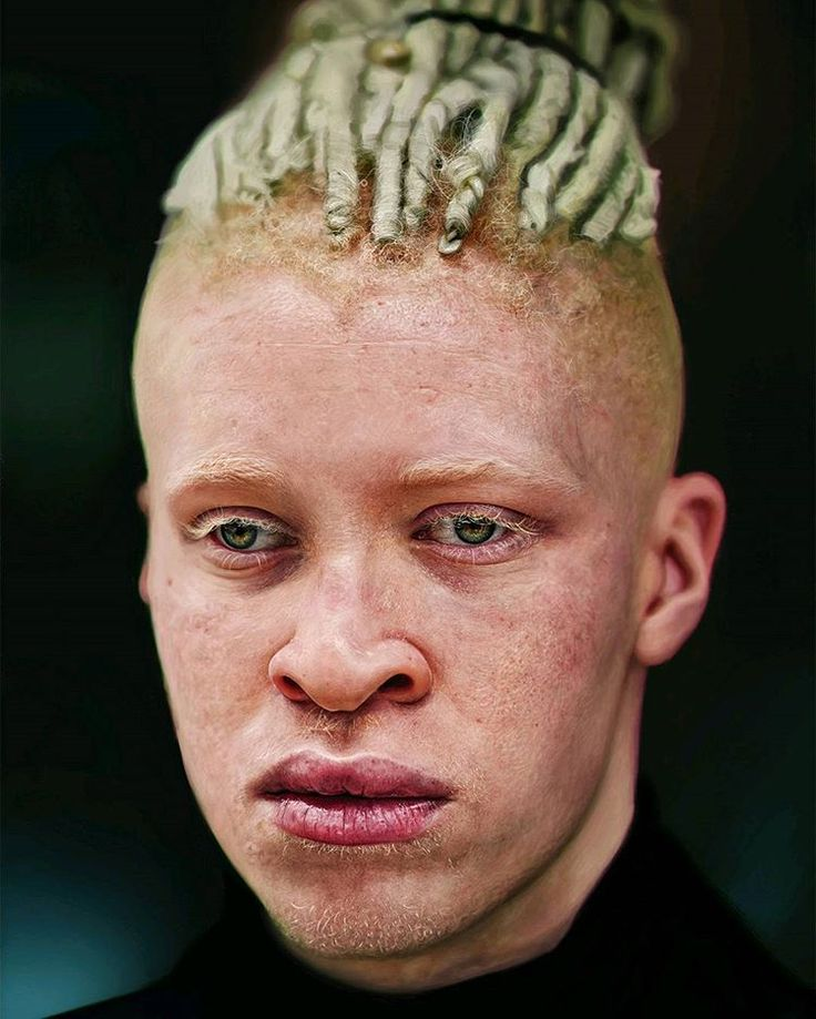 Digital Painting of the Albino Model Shaun Ross by Martina Palazzese