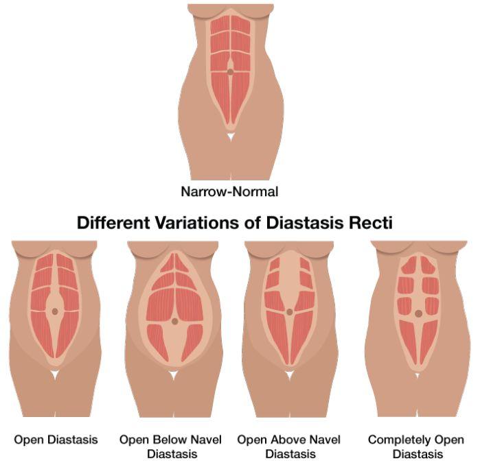 63 best images about diastasis recti mummy tummy on pinterest diastasis recti diastasis. Black Bedroom Furniture Sets. Home Design Ideas
