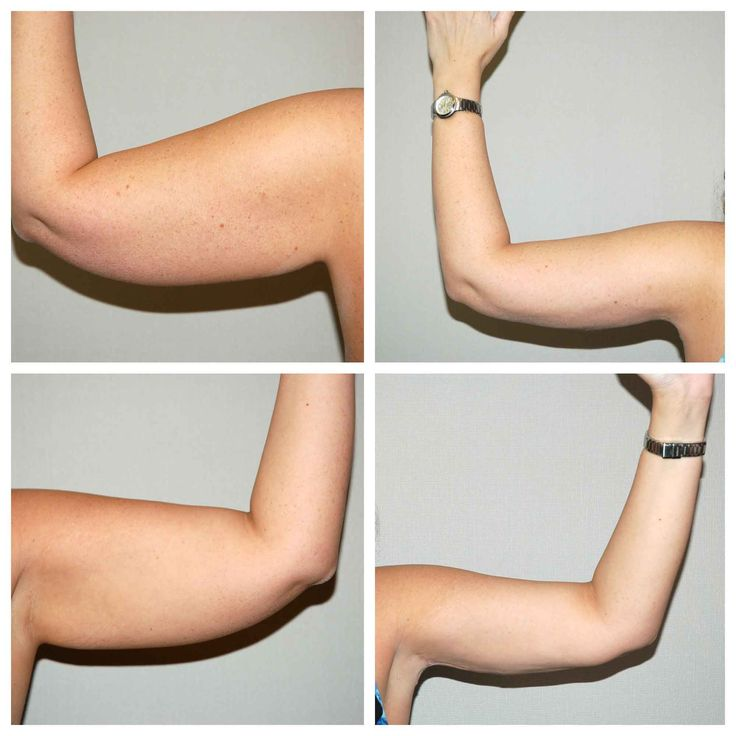 Arm liposuction results 7 – Liposuction before and after