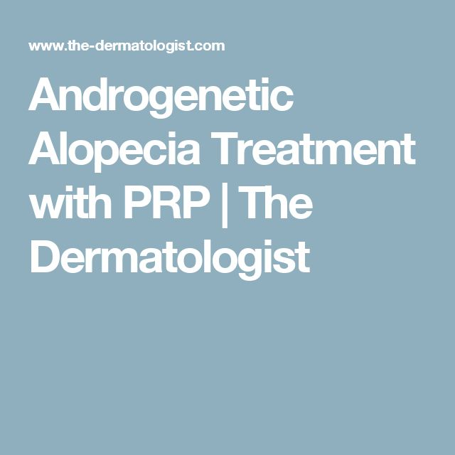 Androgenetic Alopecia Treatment with PRP | The Dermatologist