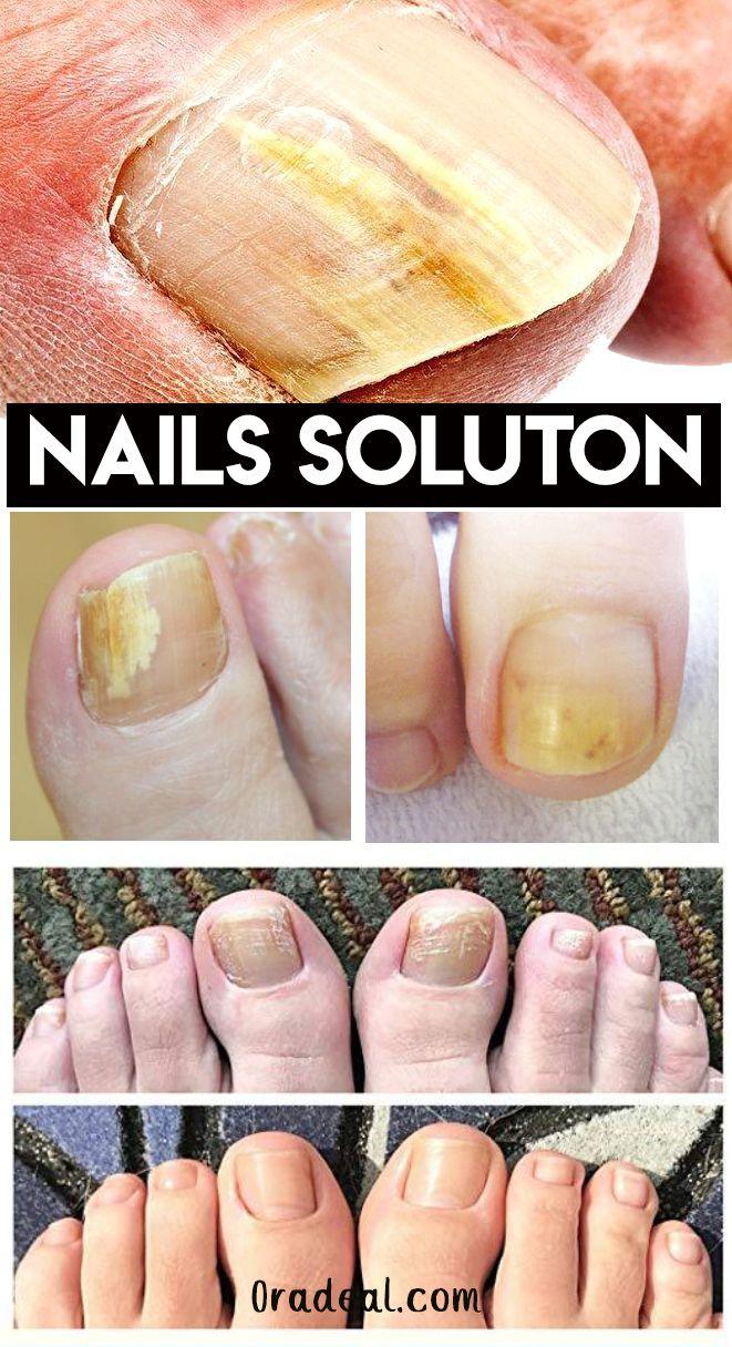 Best Nails Solutions Nail Repair Nail Problems Ingrown Toe Nail
