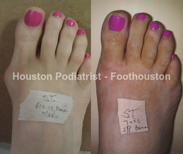 A podiatrist specializes in treating foot, ankle and lower leg disorders. Podiatrists also treat conditions like bunions, hammertoes, calluses and ankle injuries. Explore their site to learn more : http://www.foothouston.com/