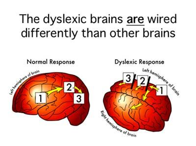 The Dyslexic Brain - Dyslexia the Gift Blog