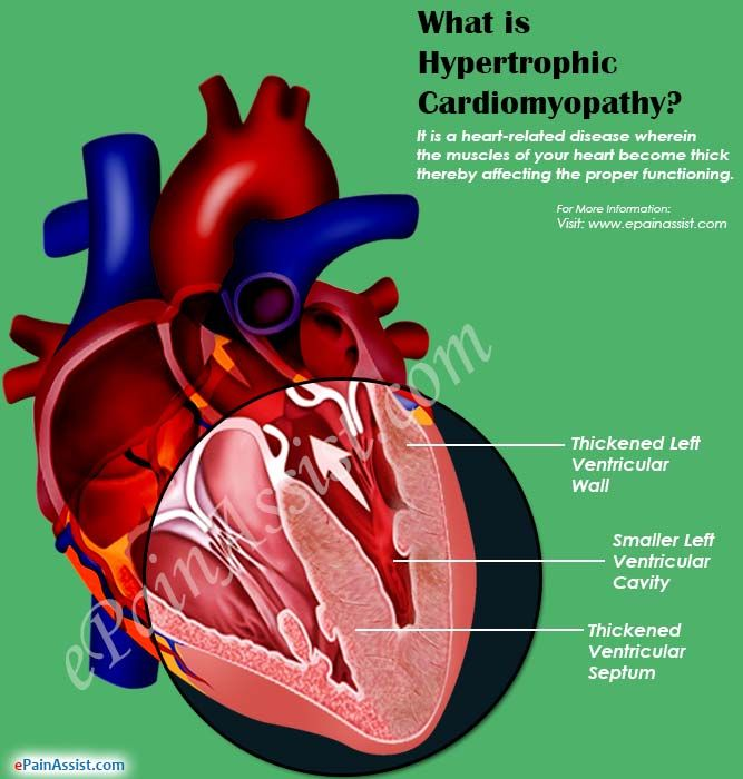 What is Hypertrophic Cardiomyopathy