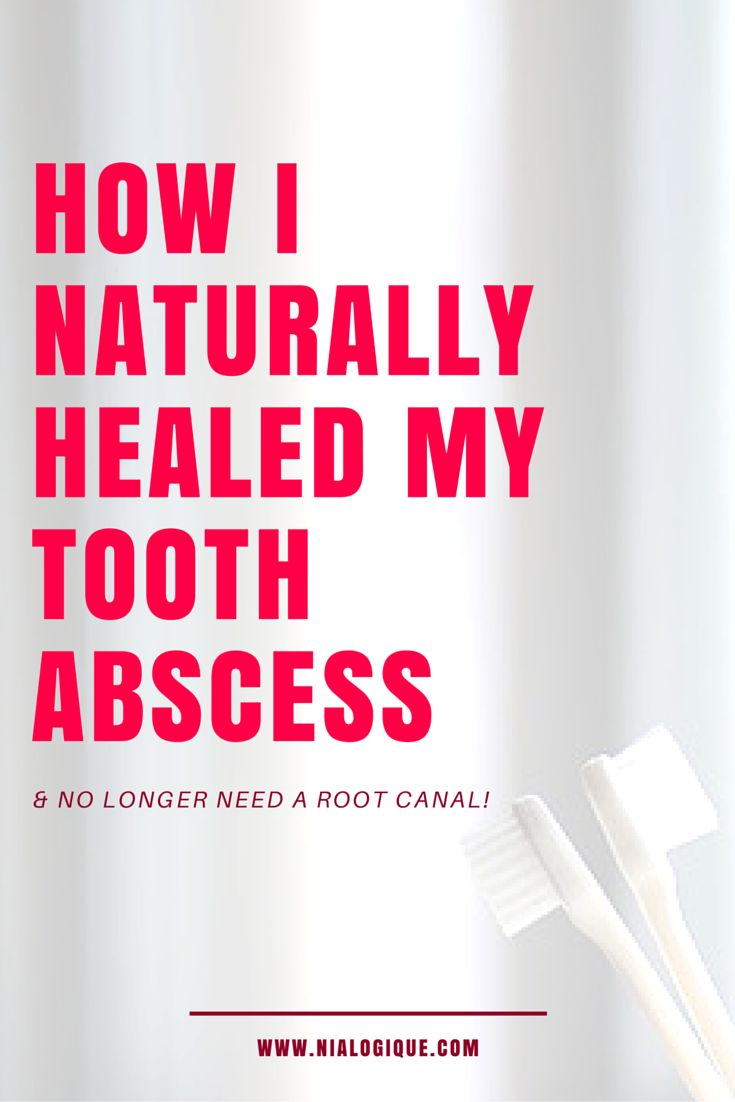 How To Get Rid Of A Root Canal Infection Naturally