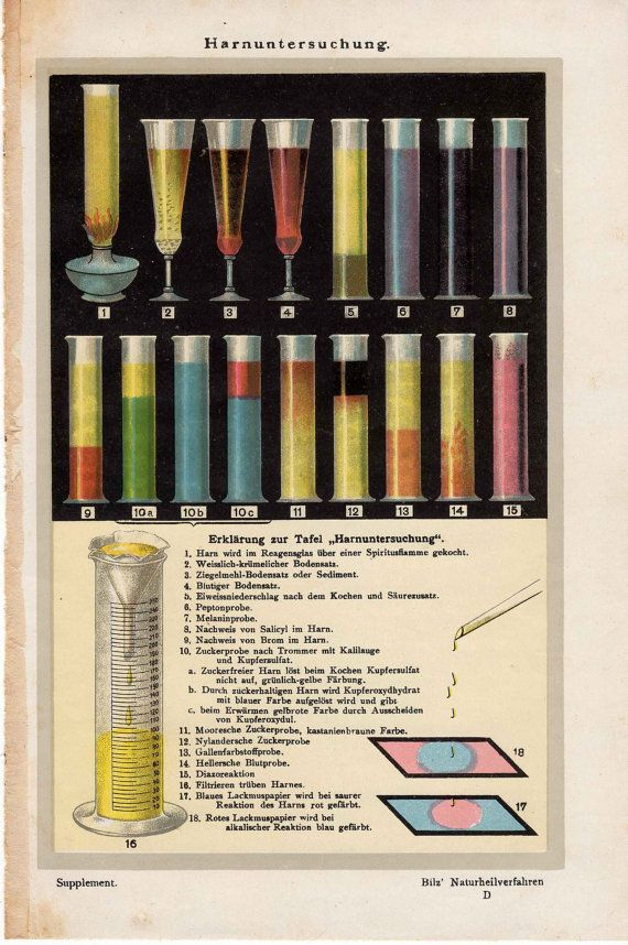 1900 urine analysis original antique medical science print - urinalysis