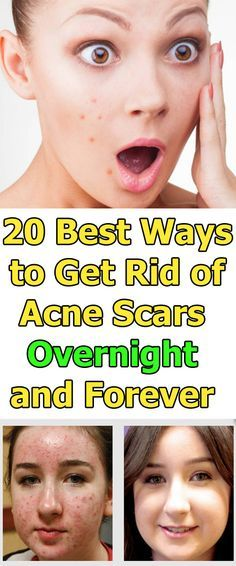 20 Best Ways to Get Rid of Acne Scars Overnight and Forever Naturally
