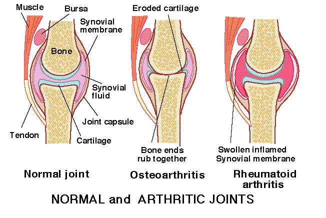 Rheumatoid Arthritis Symptoms Hands *** You can find out more details at the link of the image.