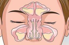 Livre-se de vez da rinite e sinusite com leite de magnésia - é muito fácil!