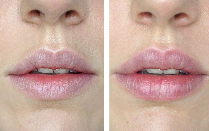 Lippen mit Ultraschallzahnbürste peelen