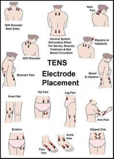Do you own a TENS machine? Some useful suggested patch placements