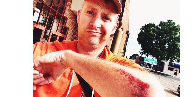 How to Treat Road Rash and Prevent Scarring  ||  Follow these road rash treatment steps to safely tend to your wounds and avoid long-lasting scars https://www.bicycling.com/training/health-injuries/how-treat-road-rash-and-prevent-scarring?utm_campaign=crowdfire&utm_content=crowdfire&utm_medium=social&utm_source=pinterest