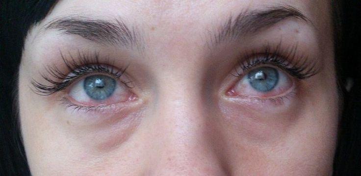 """Красные, слезящиеся глаза далеко не всегда возникают вследствие бессонной ночи, этот симптом нельзя оставлять без внимания, особенно если вы носите контактные линзы. Это может оказаться кератит, инфекция роговицы, проявляющаяся покраснением, болью, воспалением, дискомфортом и множеством других неприятных симптомов. Обнаруженный на ранней стадии, кератит можно вылечить без особых сложностей.  Промедление же грозит значительной потерей остроты зрения. """"Я наблюдаю это каждый день, люди с…"""
