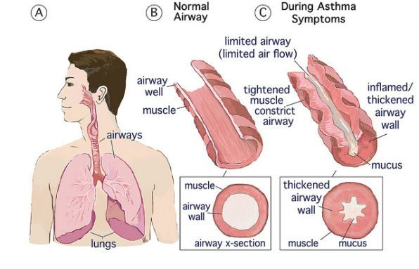 Asthma: Lung disorder