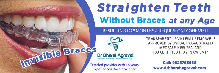 Invisible clear braces for teeth cost, price, reviews, pros-cons, before-after from India's leading best cosmetic dentist Bharat Agravat Ahmedabad Gujarat