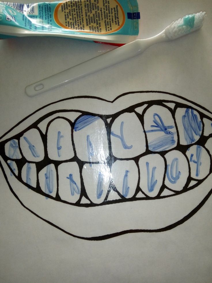 Imprimé et plastifié , l'enfant dessine les caries et par la suite il s'amuse a brosser les dents. Imprimés et plastifiés. Parmi divers aliments prient sur les prospectuces,, l'enfant doit deviner quels sont mauvais pour les dents et moins mauvais . Et...