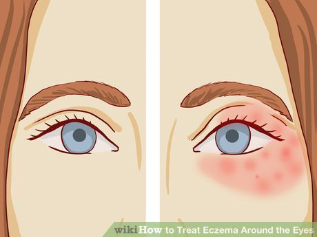 Image titled Treat Eczema Around the Eyes Step 3