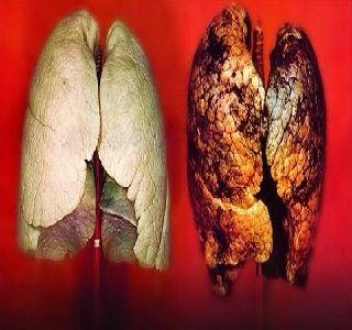 Szuperhatásos főzet! Ez a gyógynövény megöli a tüdőben lévő rákos sejtjek 86 %-át! - Megelőzés - Test és Lélek - www.kiskegyed.hu