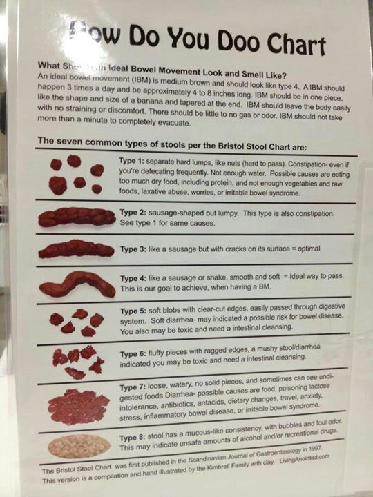 24 best Digestive Output images on Pinterest Live, Picture video - stool color chart