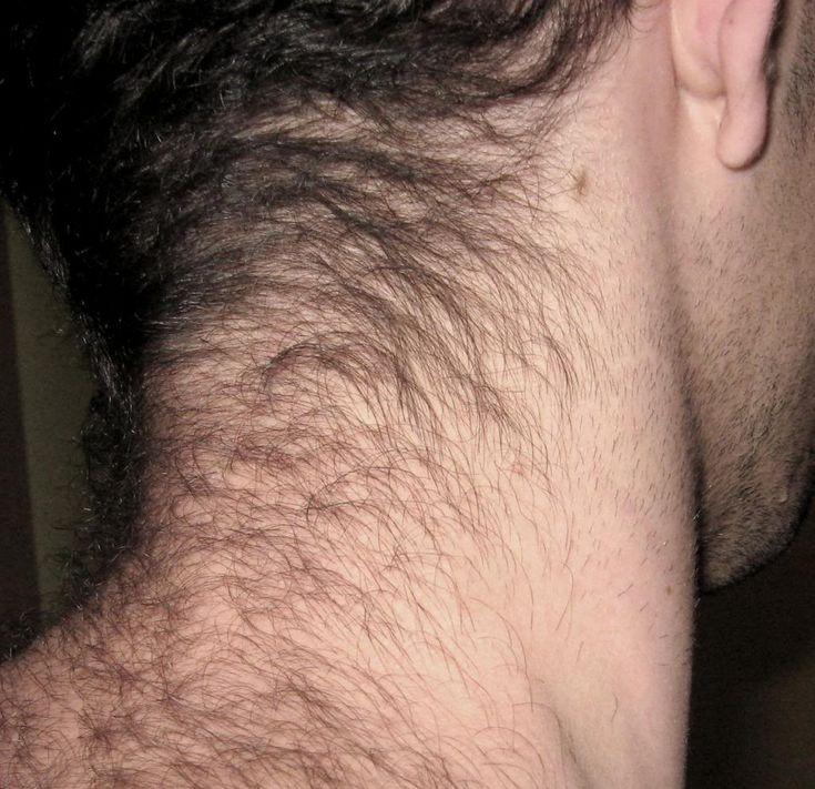 Neck-Hair-Ashley-Weston.jpg (1024×990)