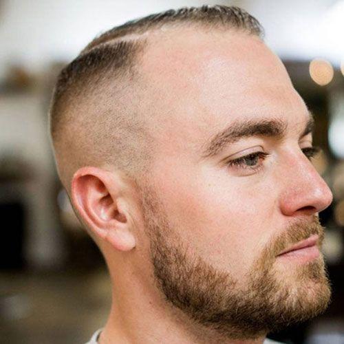29++ Male pattern baldness hairstyles ideas in 2021